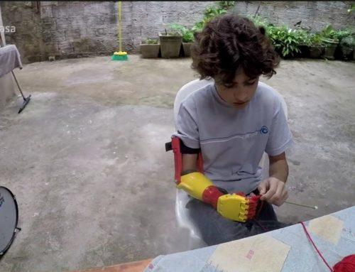 Menino ganha braço mecânico feito em impressora 3D